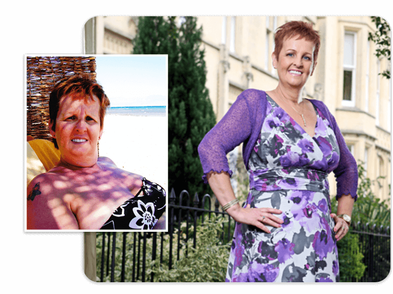 Before and after of gastric band patient Amanda