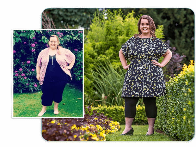 Before and after of gastric sleeve patient Amy