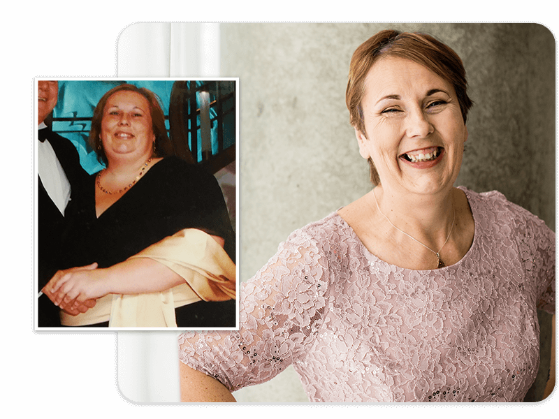 Before and after of gastric sleeve patient Angela