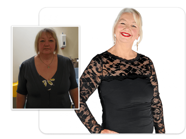 Before and after of gastric band patient Ann