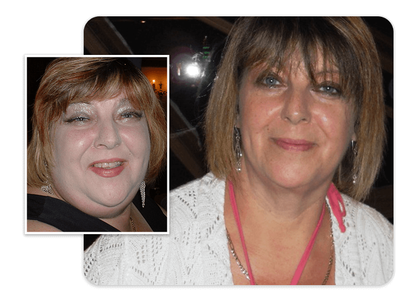 Before and after of gastric bypass patient Carol
