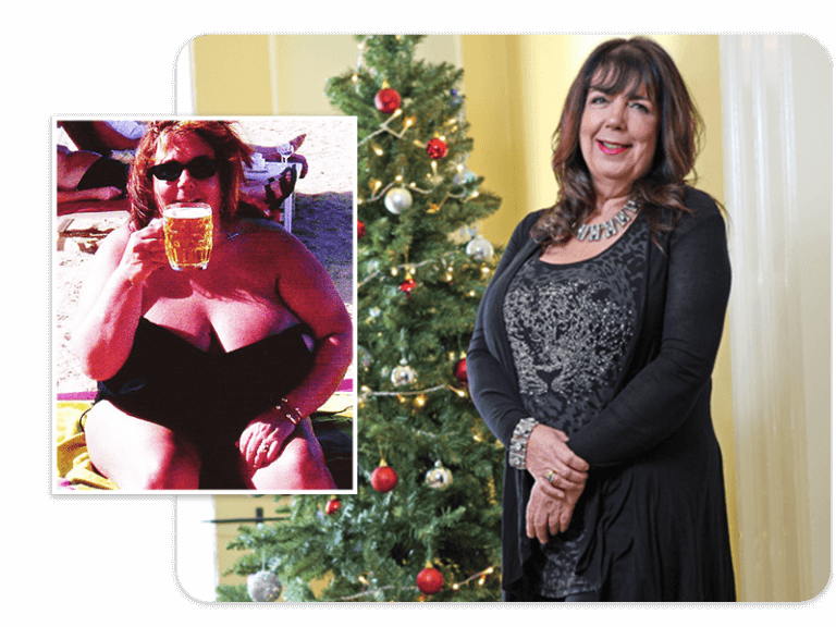 Before and after of gastric band patient Carole