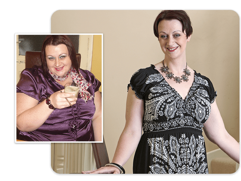 Before and after of gastric bypass patient Claire