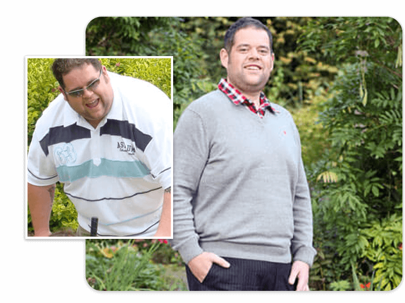 Before and after of gastric bypass patient Duncan