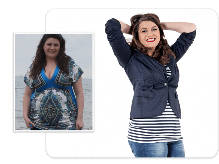 Before and after of gastric band patient Erin