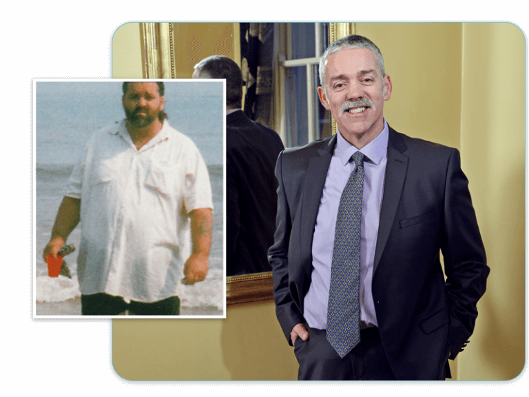 Before and after of gastric band patient Frank