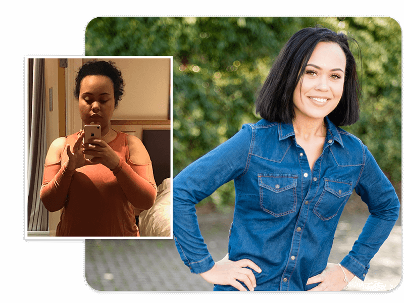 Before and after of gastric bypass patient Georgina
