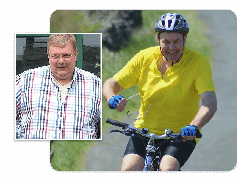 Before and after of gastric band patient Graham