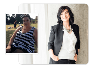 Before and after of gastric sleeve patient Hali