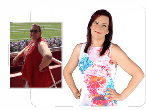 Before and after of gastric band patient Jackie