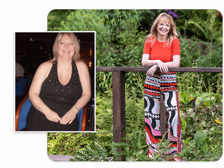 Before and after of gastric band patient Jane