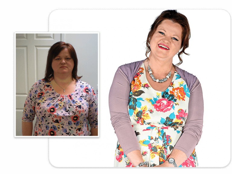 Before and after of gastric band patient Janet