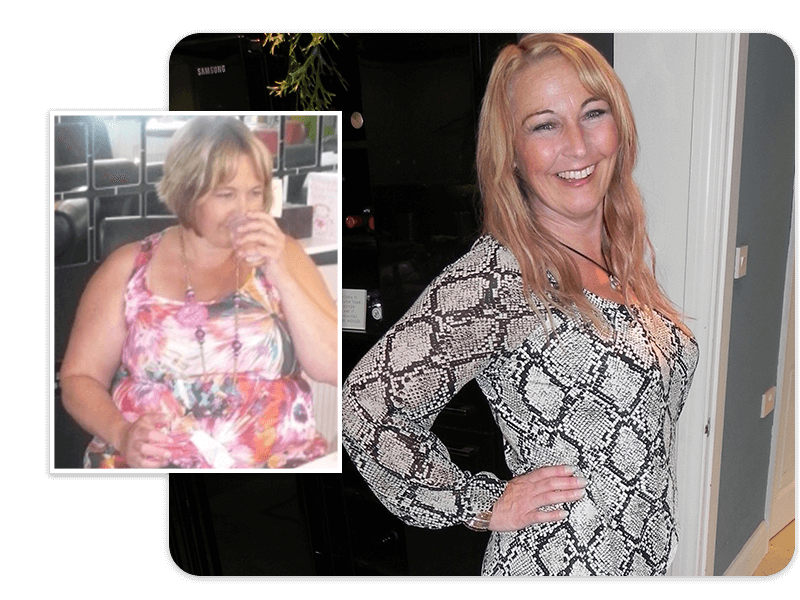 Before and after of gastric band patient Jayne