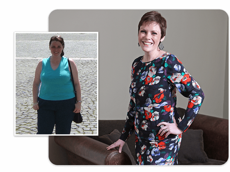 Before and after of gastric bypass patient Jenny