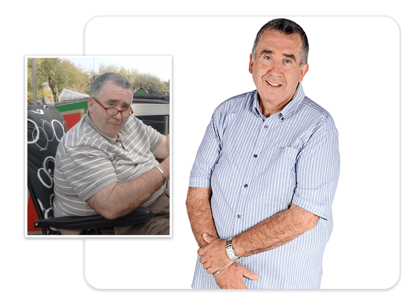 Before and after of gastric bypass patient John