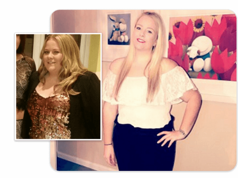 Before and after of gastric band patient Katie