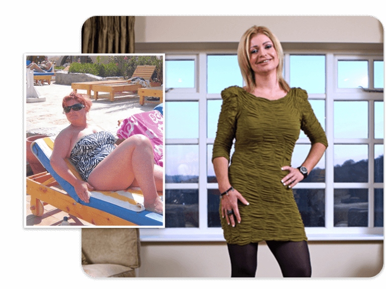 Before and after of gastric band patient Lisa