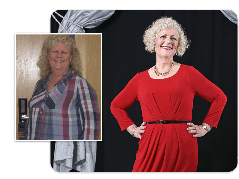 Before and after of gastric bypass patient Louisette