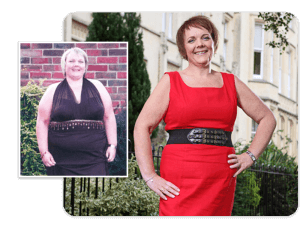 Before and after of gastric band patient Michelle