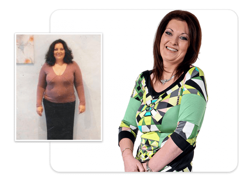 Before and after of gastric band patient Nancy
