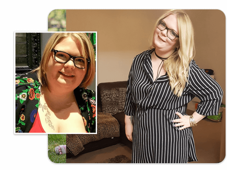 Before and after of gastric sleeve patient Nia