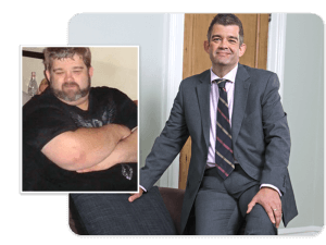 Before and after of gastric band patient Richard