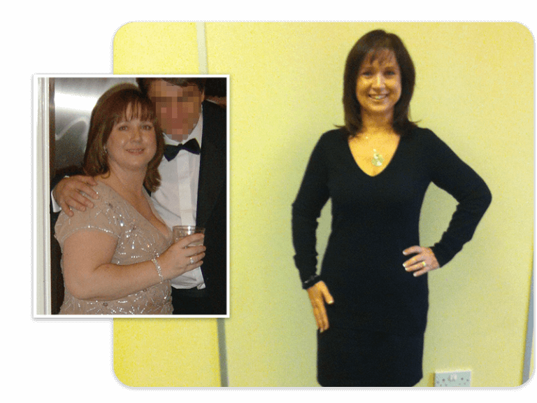 Before and after of gastric band patient Sandra