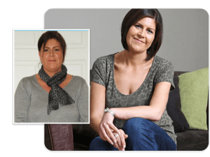 Before and after of gastric bypass patient Sara