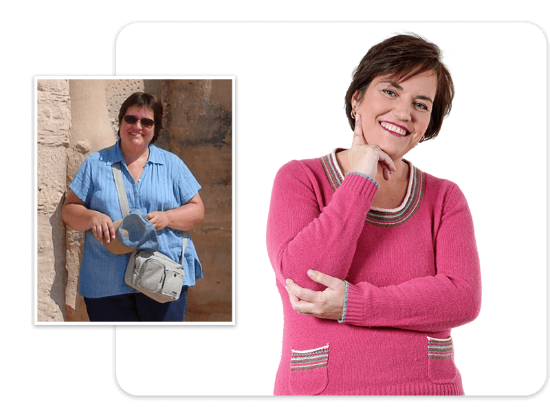 Before and after of gastric bypass patient Sarah