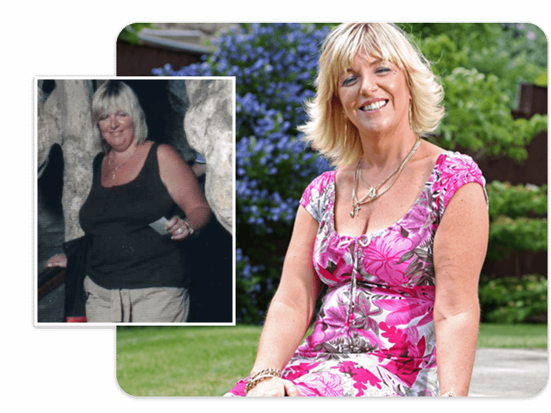 Before and after of gastric band patient Tracey