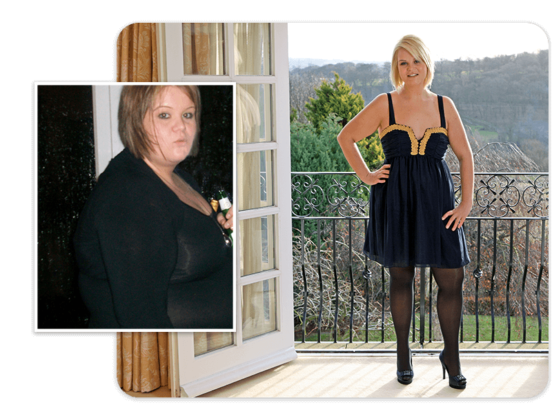 Before and after of gastric band patient Victoria