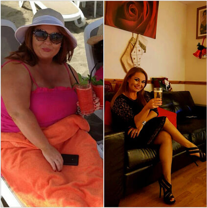 Before and after of gastric sleeve patient Ursula