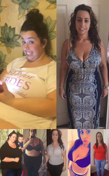 Before and after of gastric band patient Claire