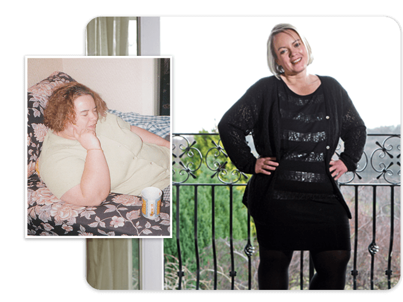 Before and after of gastric bypass patient Zoe