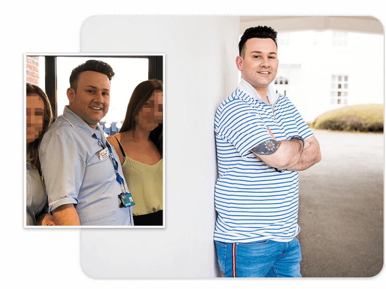 Before and after of gastric band patient David