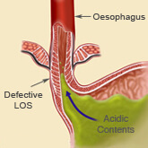 Example of a weak or defective lower oesophageal sphincter