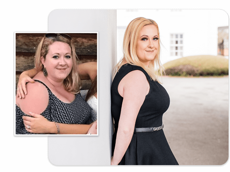 Before and after of gastric sleeve patient Julie