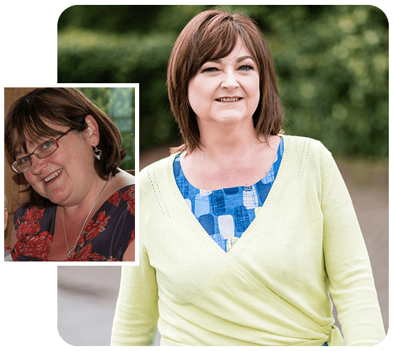 Before and after of gastric bypass patient Wendy