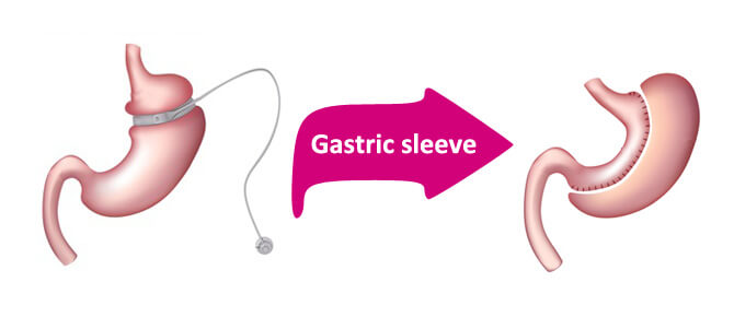 Diagram of gastric band to gastric sleeve conversion