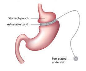 gastric band diagram