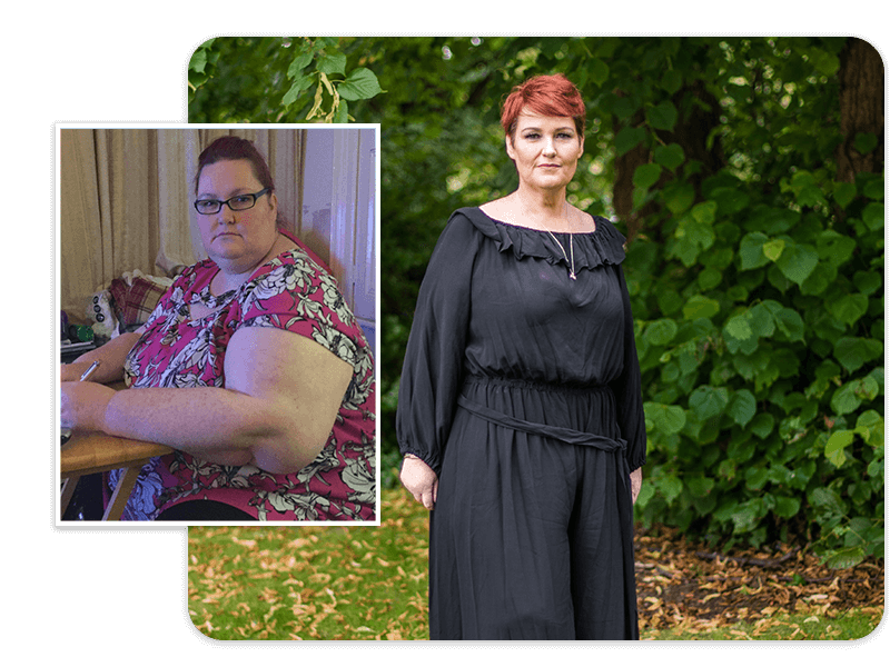 gastric sleeve before and after weight loss surgery