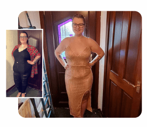 Image of Nikita before and after losing 12 stone with her gastric sleeve weight loss procedure