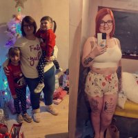 Nikita-exactly-one-year-after-gastric-sleeve-surgery