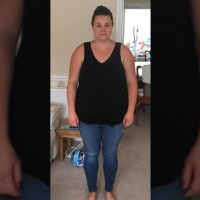 Image of sarah before having gastric sleeve surgery with Healthier Weight in 2018